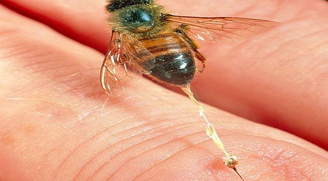 Arı zehri ile sağlıklarına kavuşuyorlar