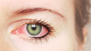 Glokom belirti vermeden körlüğe neden olabiliyor