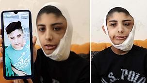 Yüzünde çıkan tümör sonrası kapanmayan yara her gün büyüyor